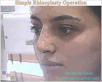 Simple rhinoplasty
