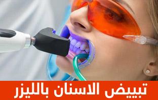 تجربتي مع تبييض الاسنان بالليزر والزوم