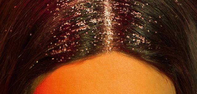 Pellicules et cheveux