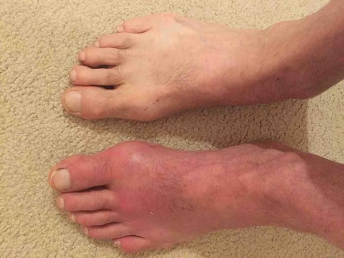 Лечение артрита и артроза народными средствами