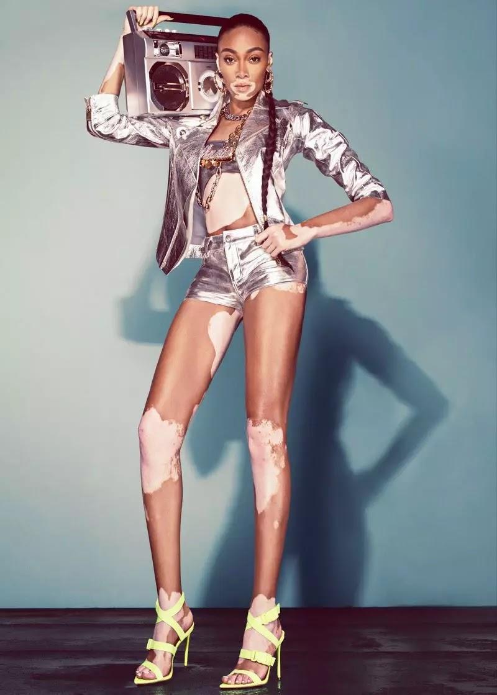 Winnie Harlow x Steve Madden Spring/Summer 2020 Campaign