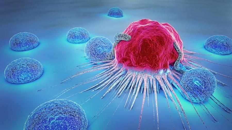 Cara Terbaik Mencegah Kanser Pemula