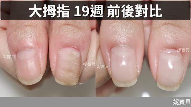 大拇指指甲-凹凸不平、變形波浪,順利矯正到健康的問題指甲處理案例!
