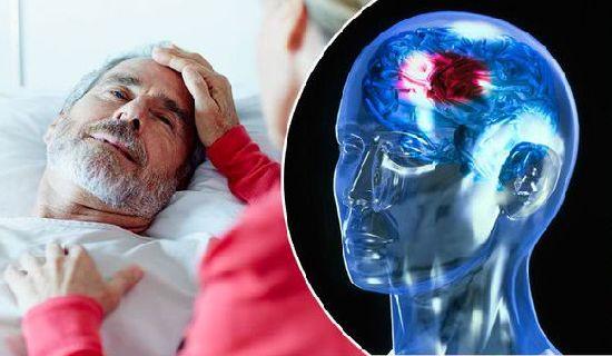 Kenali ciri ciri gejala stroke di artikel ini untuk menghindari dampak buruk bagi kesehatan dikemudian hari.
