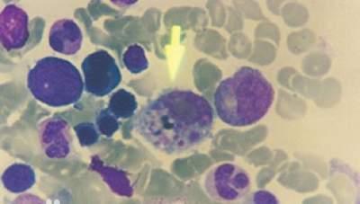 Actual View of Hantavirus under a microscope