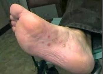 Que medicina de um fungo de pernas