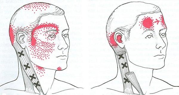 Migraine : Les causes qui peuvent déclencher les crises