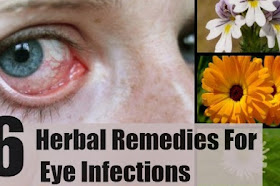 Theboegis : When You Trouble With Eyes ,! Do not panic. Cure With These 6 Herbal Ways