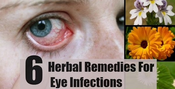 When You Trouble With Eyes ,! Do not panic. Cure With These 6 Herbal Ways