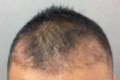 Transplantasi Rambut Di Usia 23 tahun, Baik Atau Buruk ?