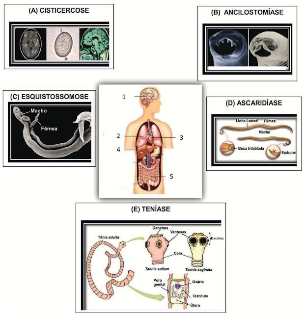 Identifique a alternativa que descreve CORRETAMENTE as características das verminoses quanto à localização do parasita no corpo humano, o seu ciclo de vida e a presença de hospedeiro intermediário. Considere as informações contidas nas figuras, conforme esquema a seguir