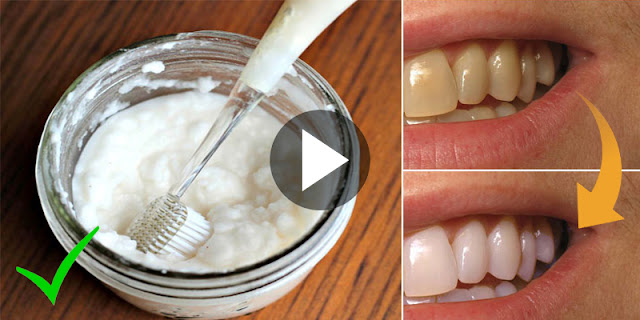 Guaranteed - How To Whiten Teeth Within 2 Minutes By Using 1 Ingredient