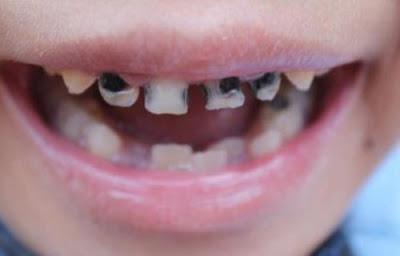 Makanan Yang Berbahaya Untuk Gigi