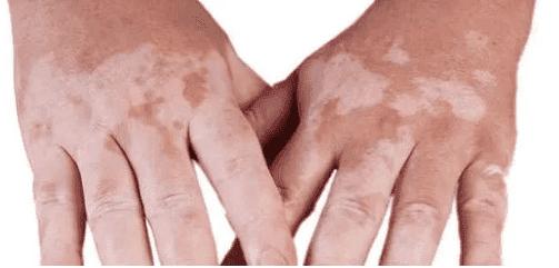 عشبة اصابع زينب لعلاج البهاق نهائيا
