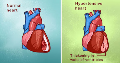 Hypertensive Heart Disease Symptoms And Prevention