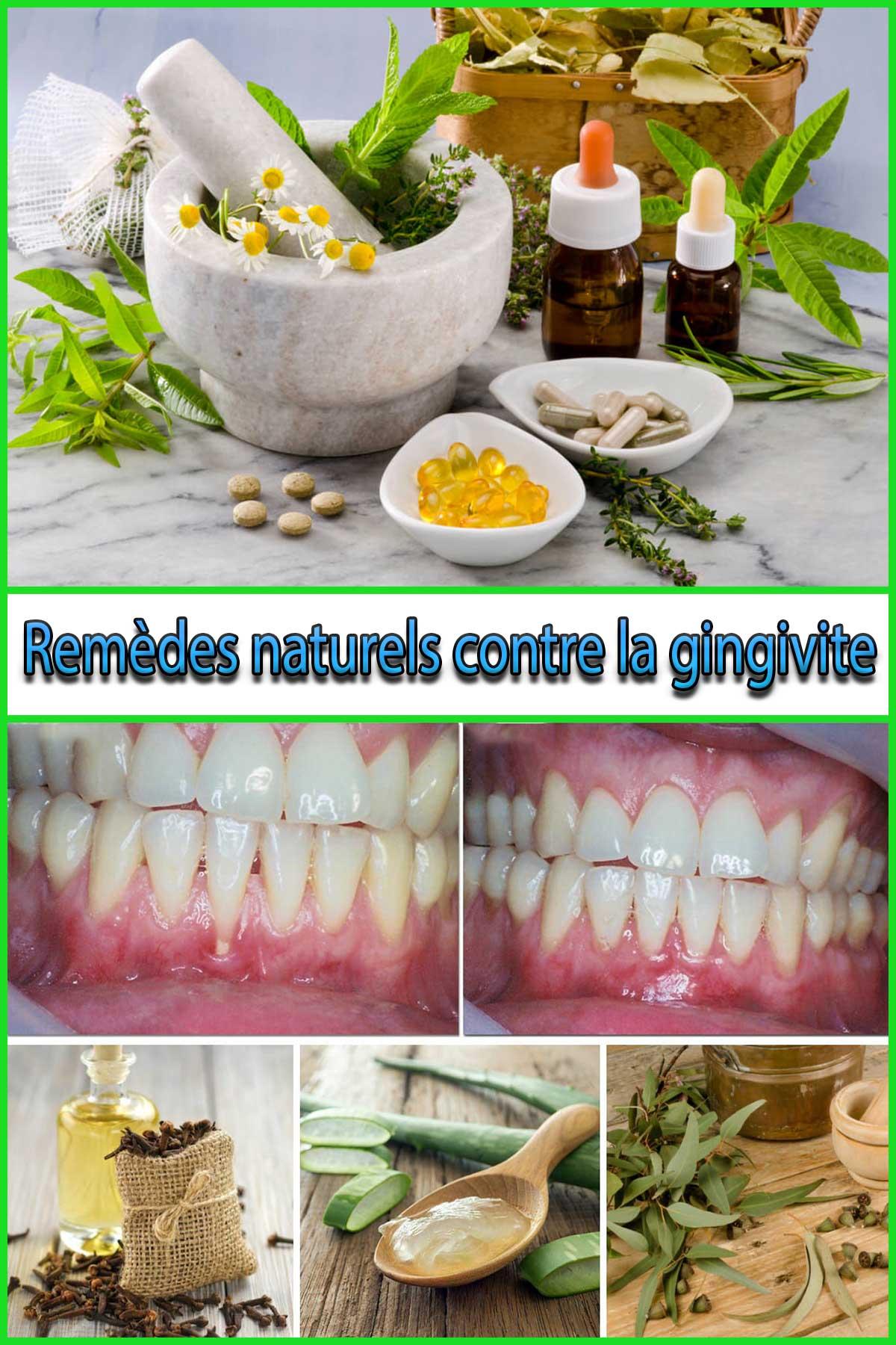 Remèdes naturels contre la gingivite