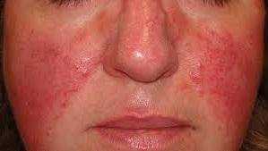 tratamiento para la rosacea en la cara