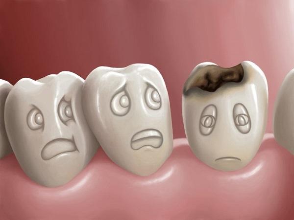 penyebab gigi berlubang dan cara mengatasinya