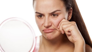 Faktor-Penyebab-Kulit-Wajah-Menjadi-Kering-dan-Kusam
