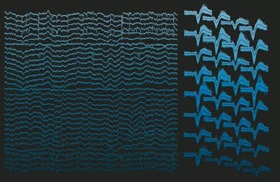 Neuralink's Brain Decoder