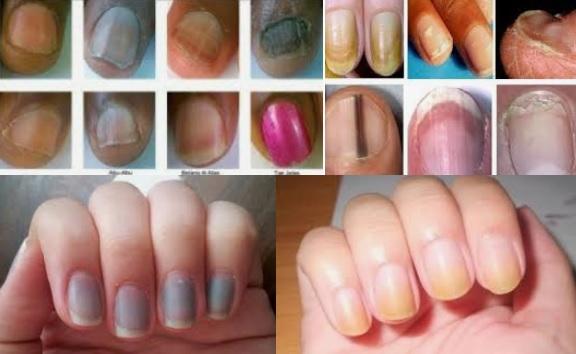 Nails, kuku