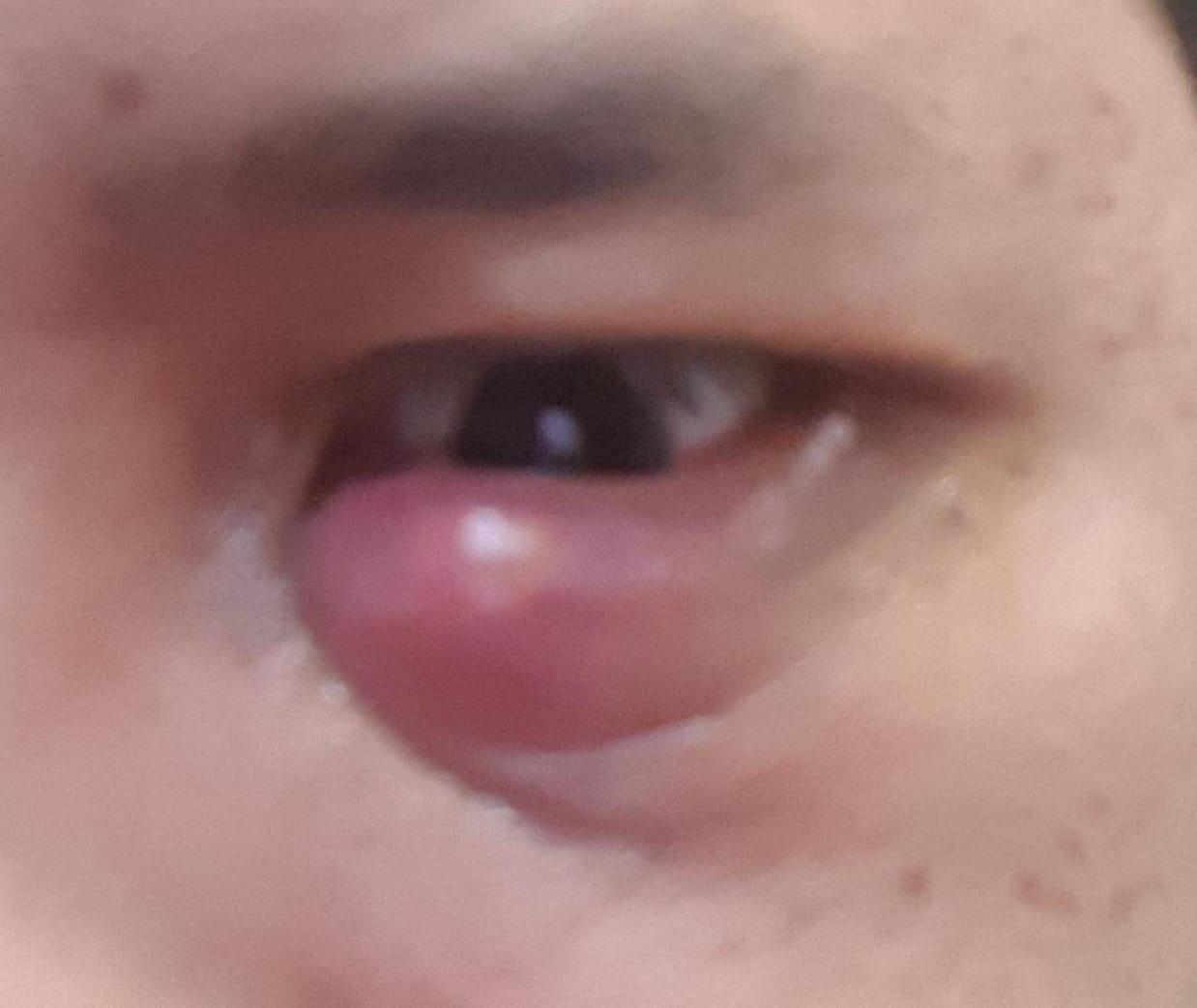 gambar mata bintitan