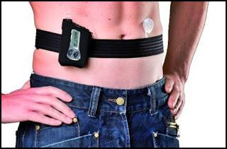 acte dosare pompe de insulina gratuite decontate CNAS