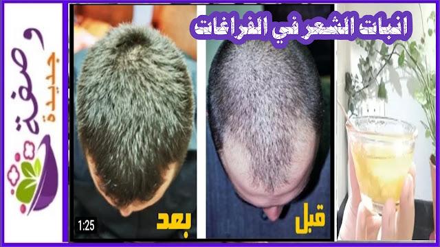 انبات الشعر في مقدمة الرأس،انبات الشعر من جديد في اماكن الجرح في الرأس،انبات الشعر للرجال بسرعة،علاج الصلع الوراثي،انبات الشعر بالثوم وصفات مجربة،بديل انبات الشعر بالليزر