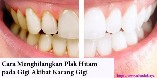 Cara Menghilangkan Plak Hitam Pada Gigi Akibat Karang Gigi