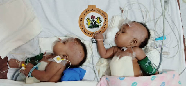 Pictures of Conjoined female twins successfully separated at the University of Ilorin Teaching Hospital