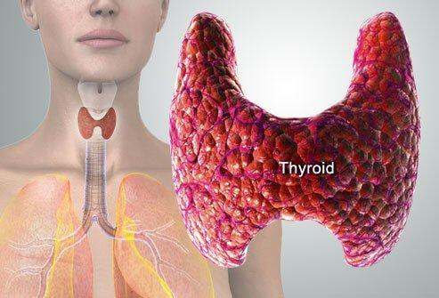 Rawatan Tiroid Tanpa Pembedahan - Ketahui Kesan Seumur Hidup Yang Terpaksa Ditanggung Dengan Pembuangan Tiroid.