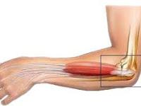 Yang perlu Anda ketahui tentang elbow dan pencegahannya