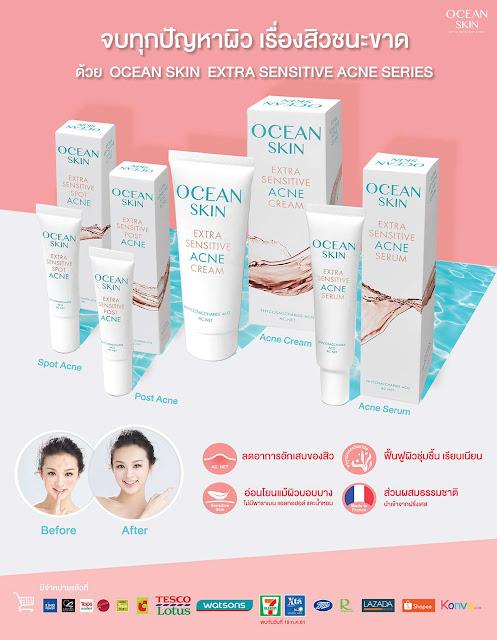 Ocean Skin Extra Sensitive Acne Series