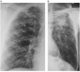 Radiologi paru-paru penderita coal worker pneumoconiosis