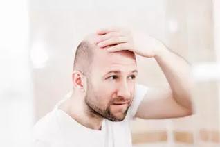 Hair loss reasons