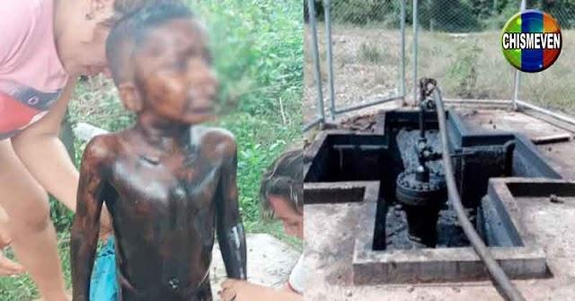 PAÍS INSEGURO | Niño de 4 años cayó en un pozo petrolero del Zulia
