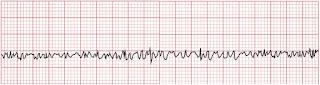 An ECG of ventricular fibrillation.