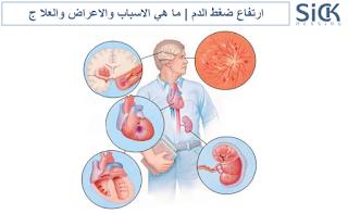 ارتفاع ضغط الدم | ما هي الاسباب والاعراض والعلا ج