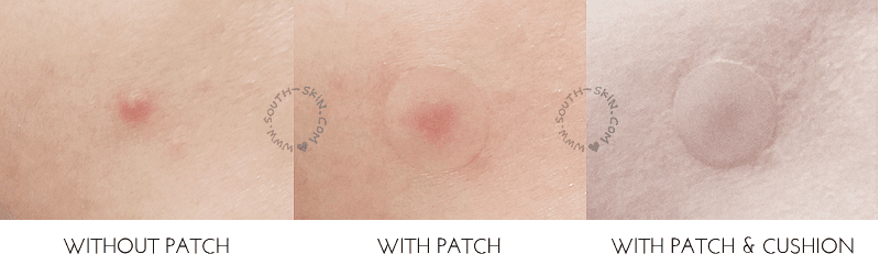 review-real-barrier-control-t-spot-clear-patch