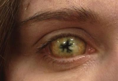 In The Flesh: l'occhio di una persona affetta da PDS