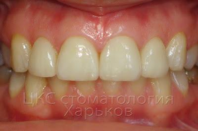 фото зубов после завершения лечения