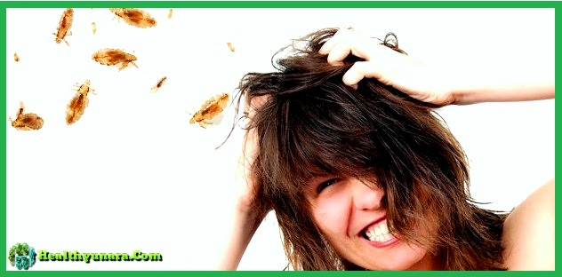 Find Out The Causes And Symptoms Of Head Lice
