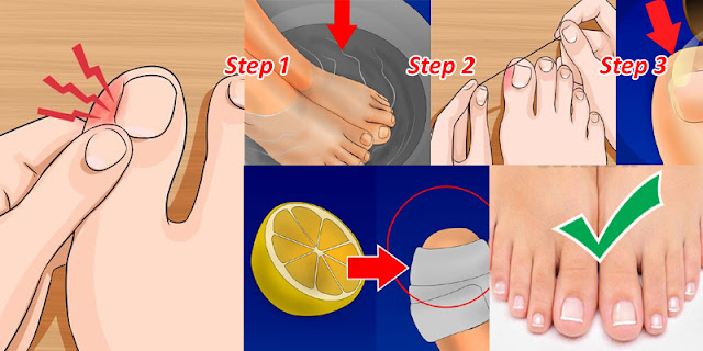 How to Remove an Ingrown Toenail At Home Without Any Surgical Procedure!