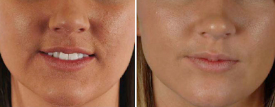 Remove Acne Scars With Microdermabrasion