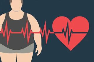 Hal yang Perlu Kamu Dilakukan untuk Mengatasi Obesitas