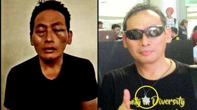 Kalung Buzzer Jokowi Ninoy Karundeng Jadi Perhatian Publik