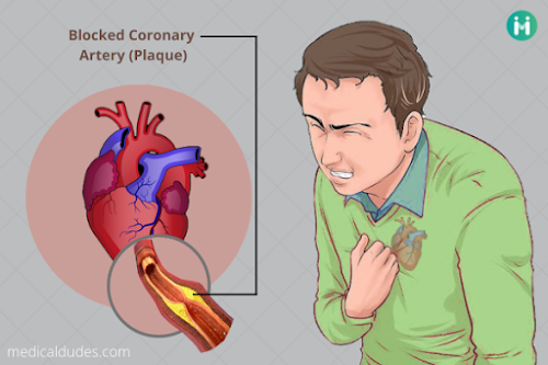 Angina Pectoris in Hindi