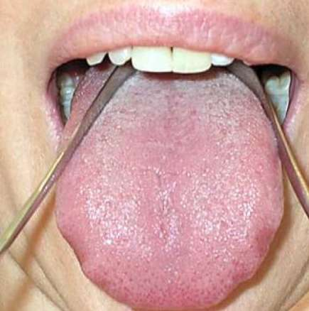 Cleaning tounge with tongue cleaner