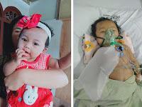 Dibutuhkan 150 Juta, Arsyila Bocah 6 Bulan Pasien Radang Otak dan Paru Baru Kumpulkan 2 Juta