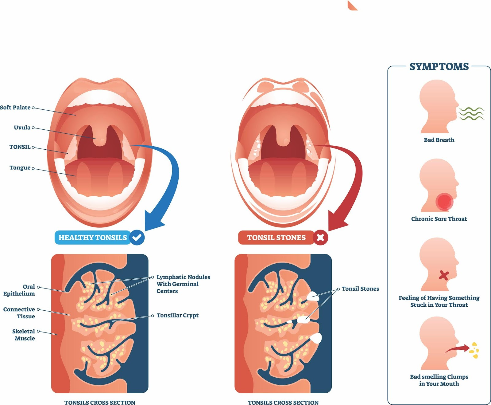 Tonsil Stones or Tonsilloliths